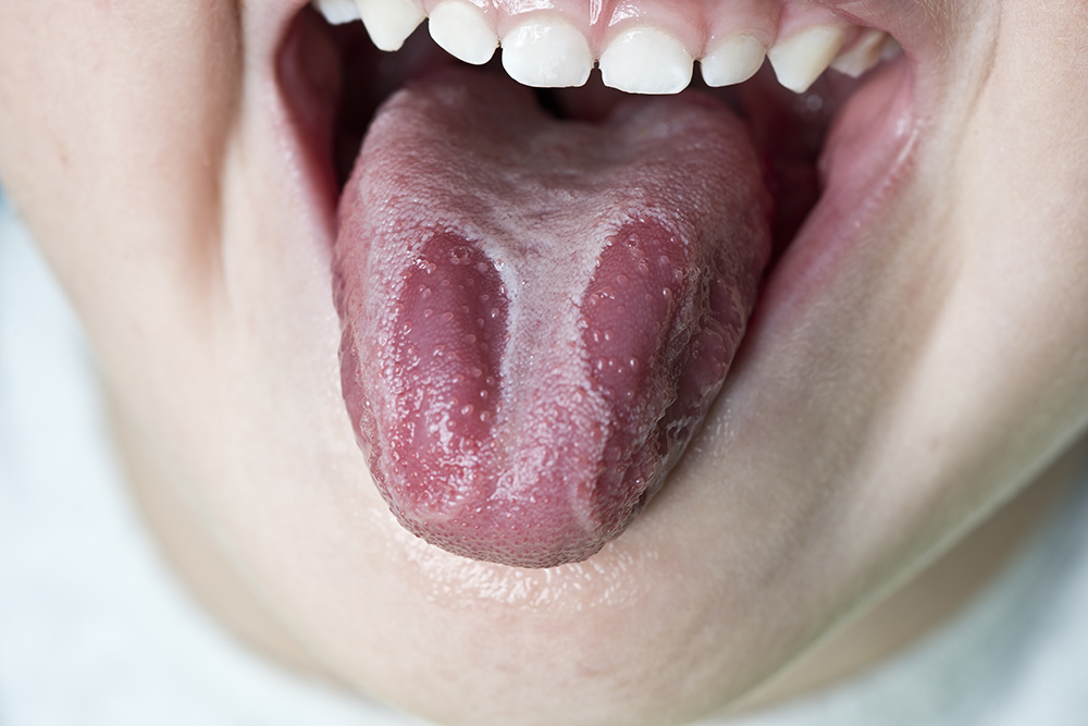 Xerostomia dry mouth condition