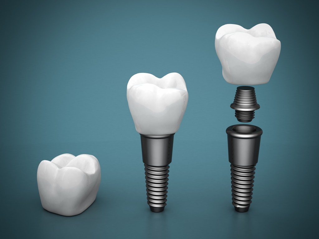 Dental Implants in Salem, NH & Newburyport, MA from Paul Mathew, DDS