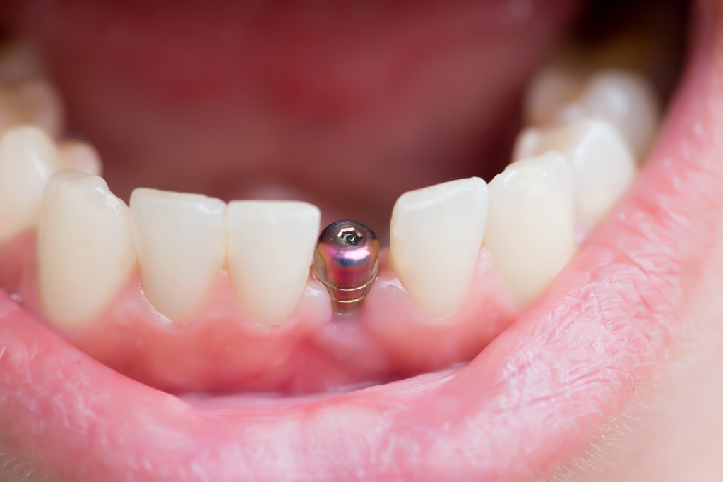 Titanium Dental Implants from Paul Mathew, DDS