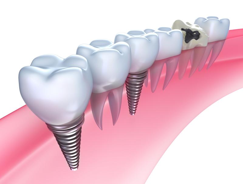 Dental Implants in Gum Diagram
