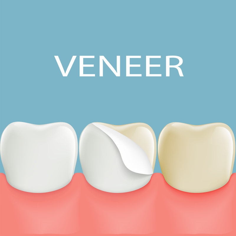 Diagram of Dental Porcelain Veneers