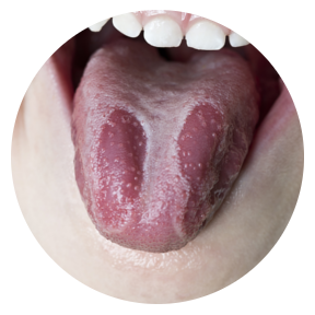 Dry Mouth Causes and T...